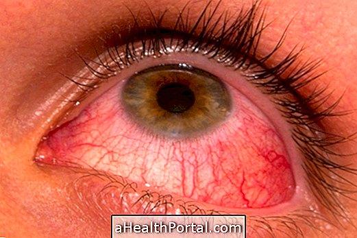 pinworm kötőhártyagyulladás