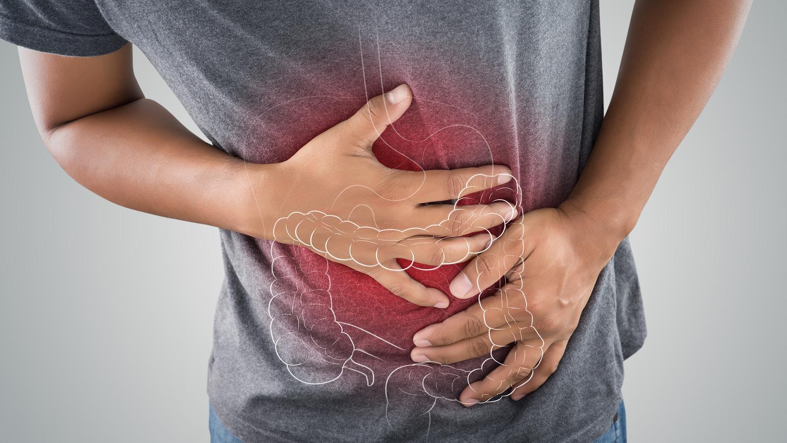 Tudnivalók az emésztési zavarokról | A rossz emésztés okai és kezelése