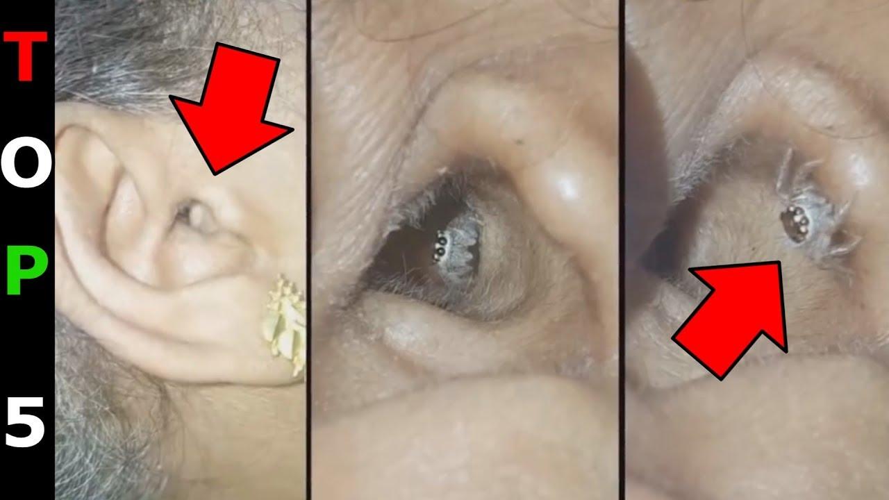 A szalagféreg tünetei az emberekben - Kezelés - Szalagféreg szervek