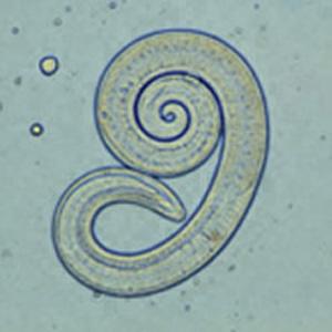 gambar struktur tubuh nemathelminthes enterobiosis kenet