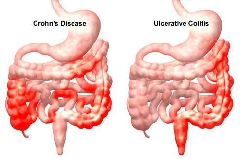 fascioliasis tabletták trichinosis izomfájdalom