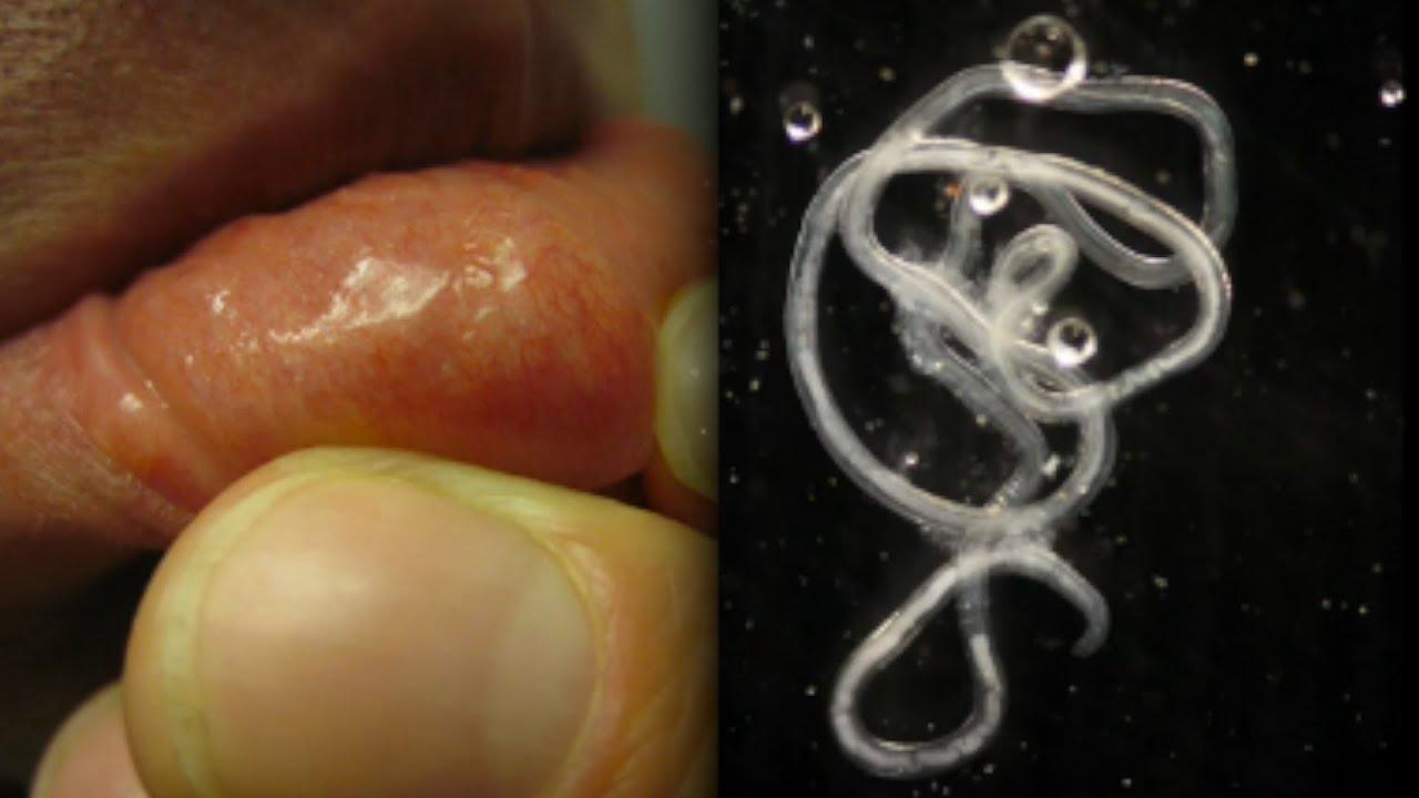 pinworm féreg eltávolító baba hányás kezelése