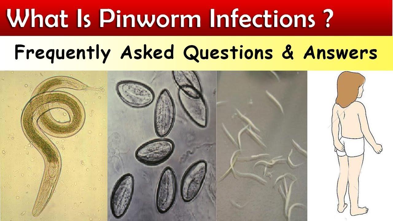 Hány pinworms jön ki a kezelés után. Kiütések a drogok után ureaplasma után