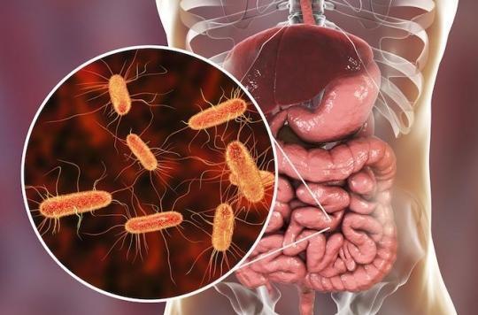 Les parasites intestinaux de l homme. Ver Parasite