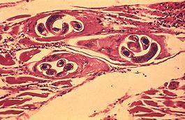 trichinella tünetek