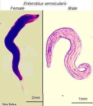 Bútorok és edények kezelése férgek felderítésekor - Tud pinworms