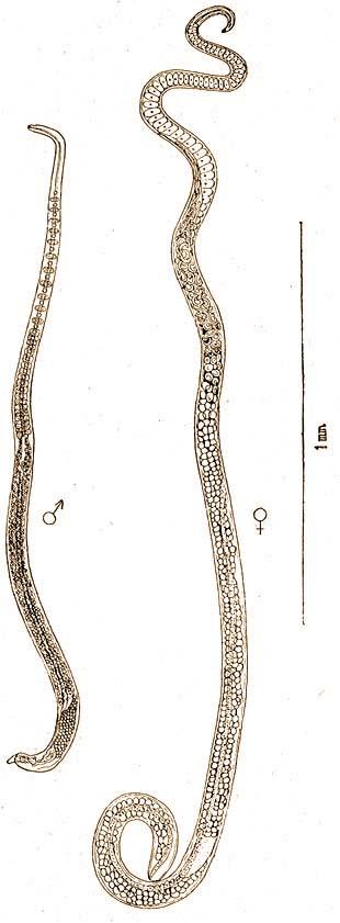 trichinosis jellemző