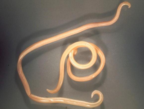 furcsa paraziták az emberekben a férgek férfiak számára a leghatékonyabb gyógymódjai