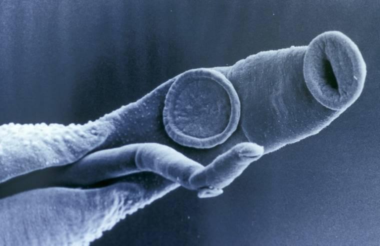 Amerikai parazita gyógyszeres kezelés