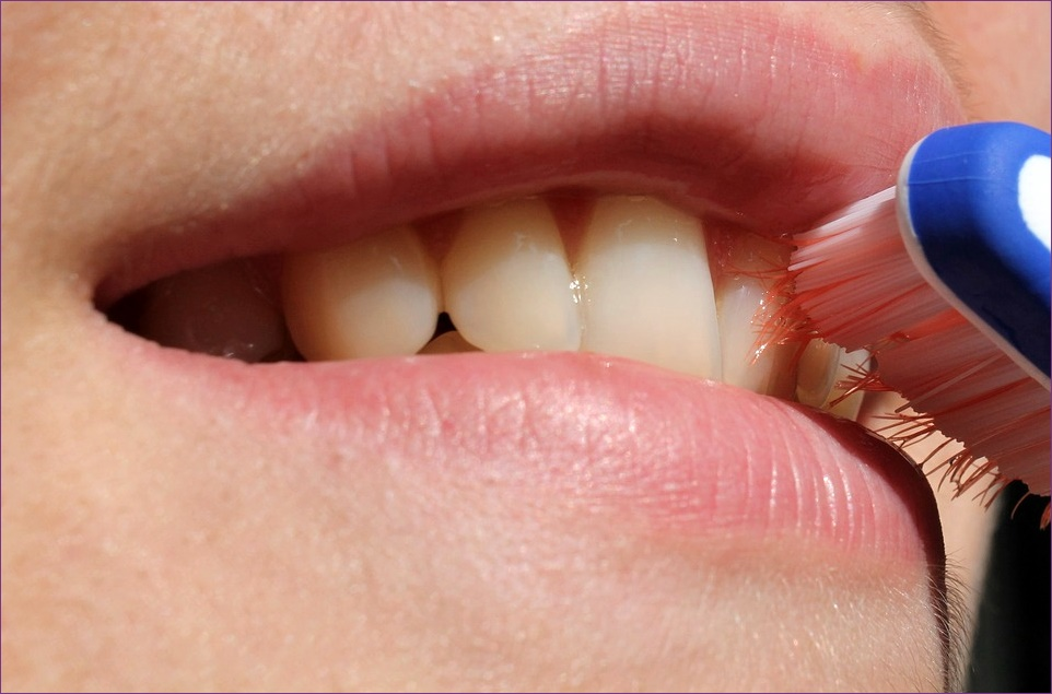 Egyszerű tippek a szájszag leküzdéséhez   parodontax