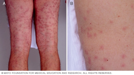 Giardia skin infection, Giardia meaning