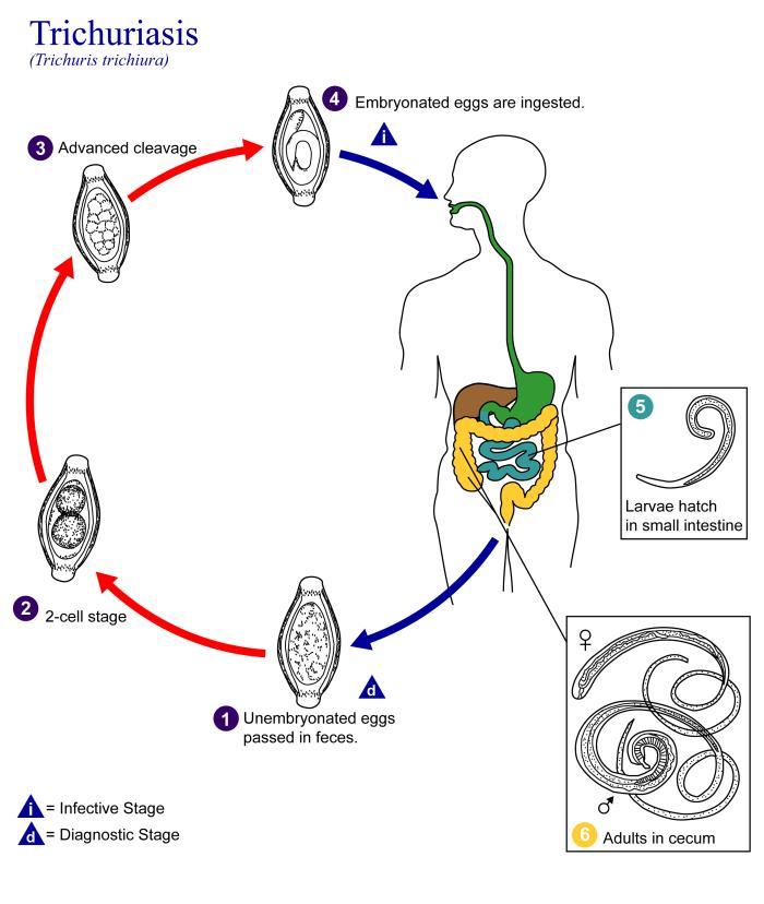 a legjobb gyógymód a férgek minden típusára parazitak ellen hazilag