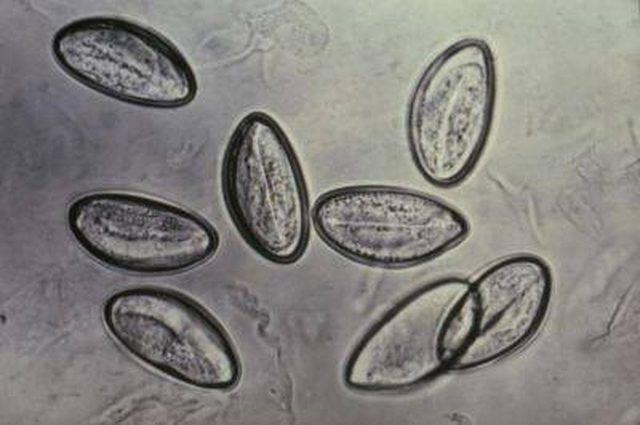 Pinworm helminth tojások