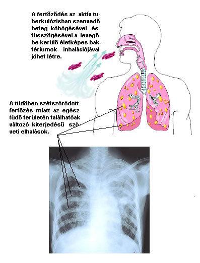 szalagféreg a tüdőben enterobiosis készítmények gyermekek számára